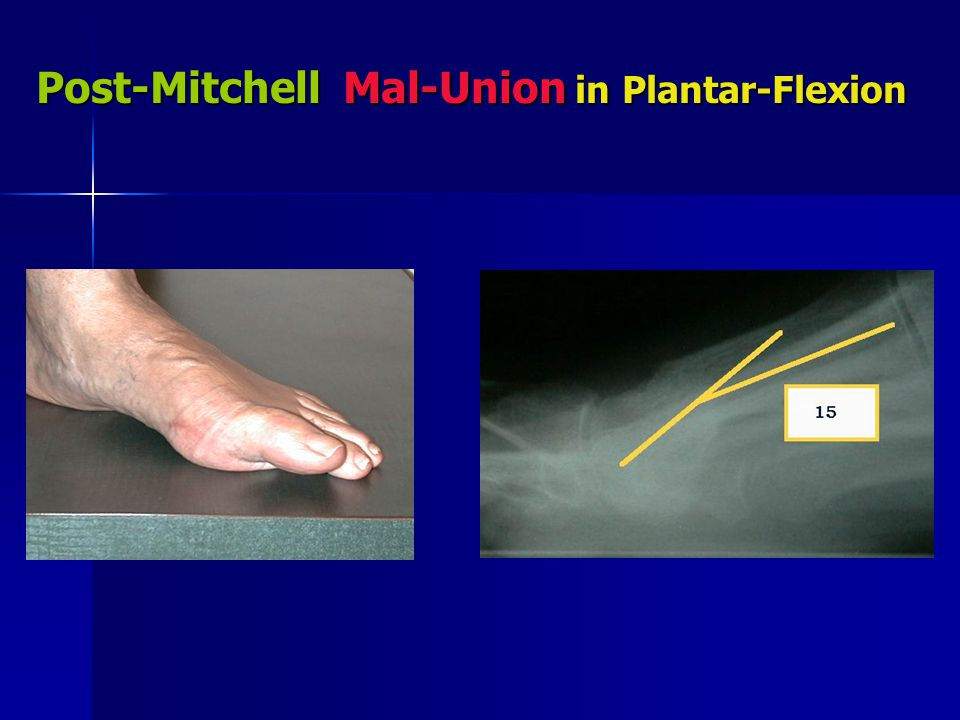 Post-Mitchell Mal-Union in Plantar-Flexion