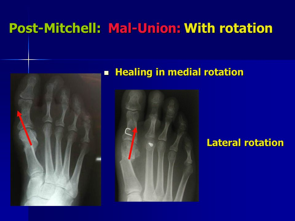 Post-Mitchell: Mal-Union: With rotation