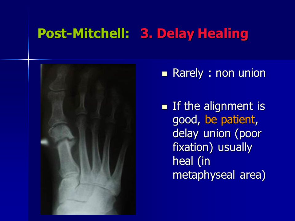 Post-Mitchell: 3. Delay Healing