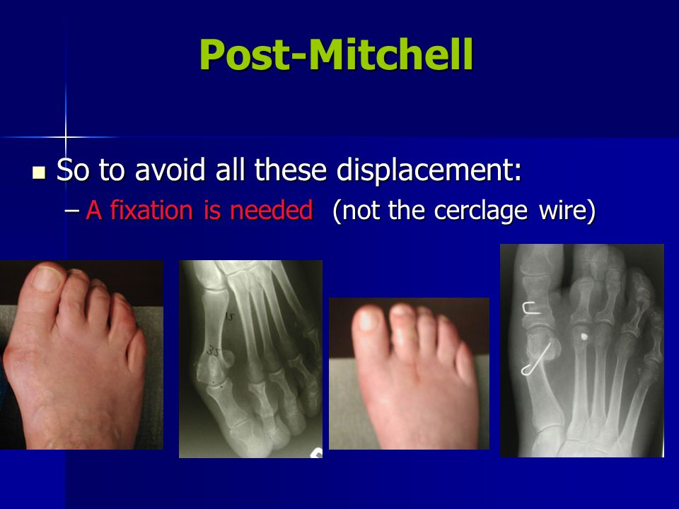 Post-Mitchell So to avoid all these displacement: