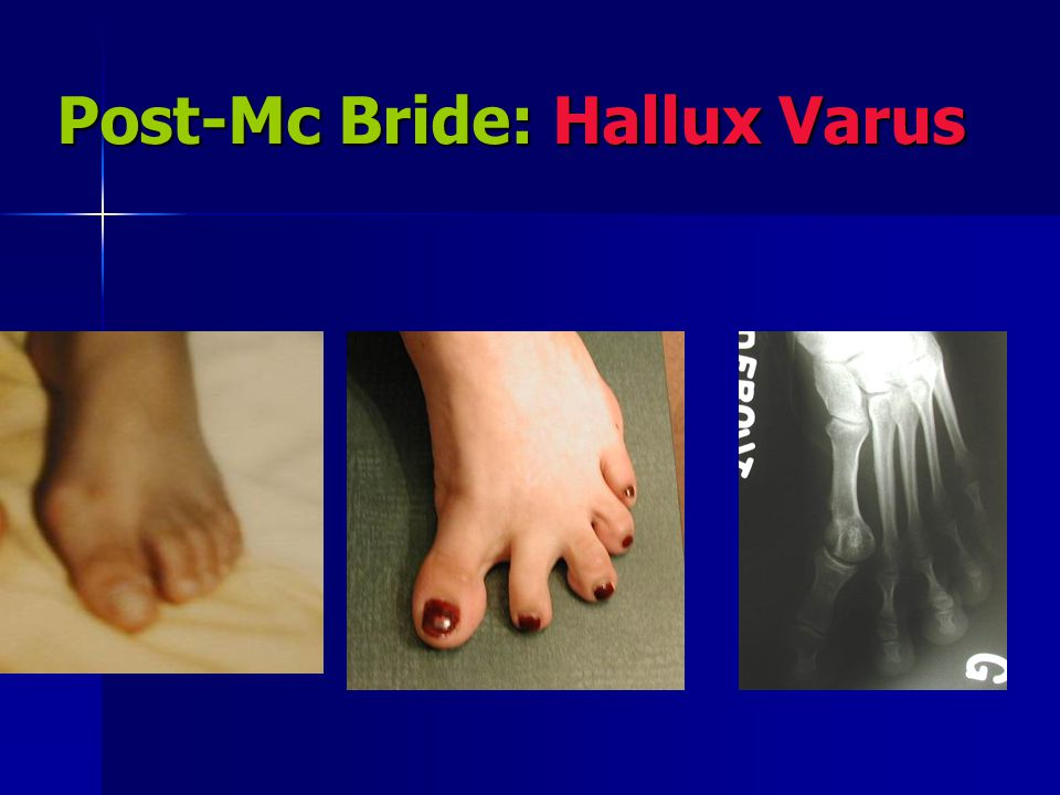 Post-Mc Bride: Hallux Varus