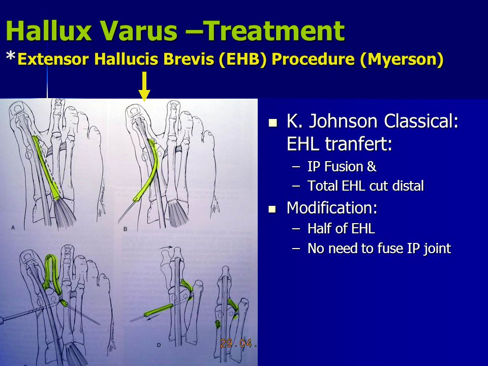 Hallux Varus –Treatment