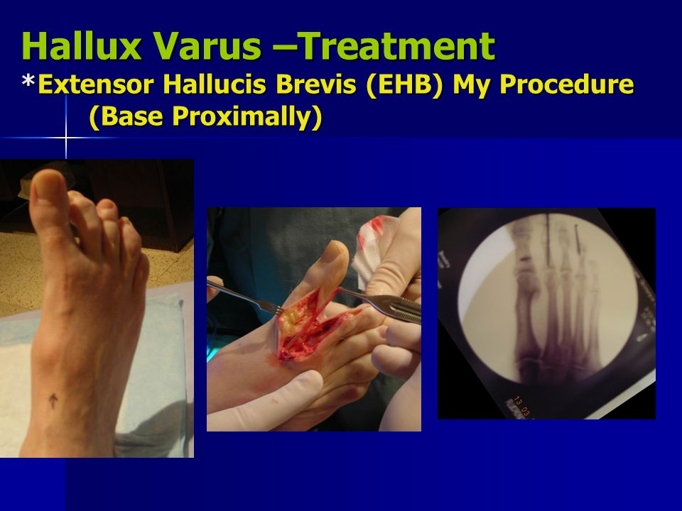 Hallux Varus –Treatment. Extensor Hallucis Brevis (EHB) My Procedure