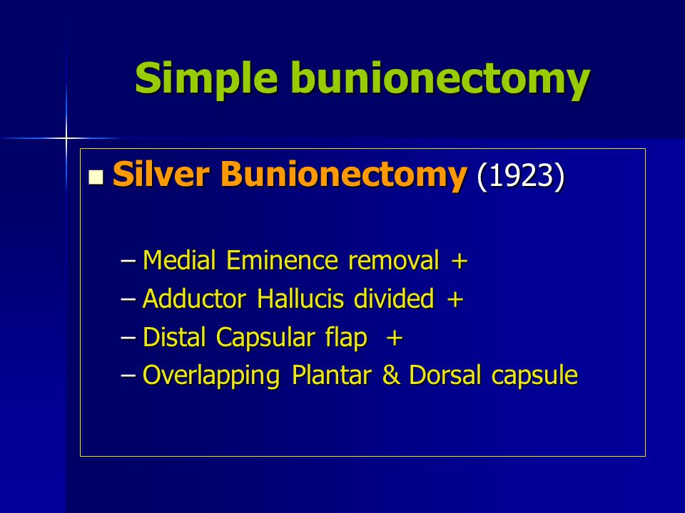 Simple bunionectomy Silver Bunionectomy (1923)