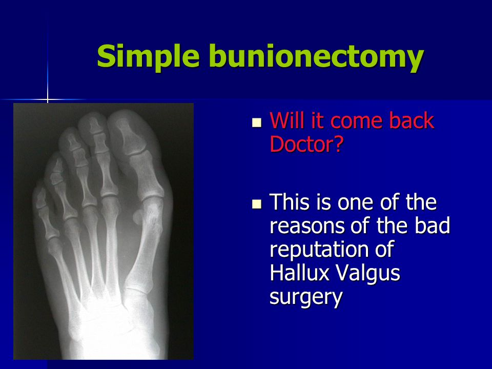 Simple bunionectomy Will it come back Doctor