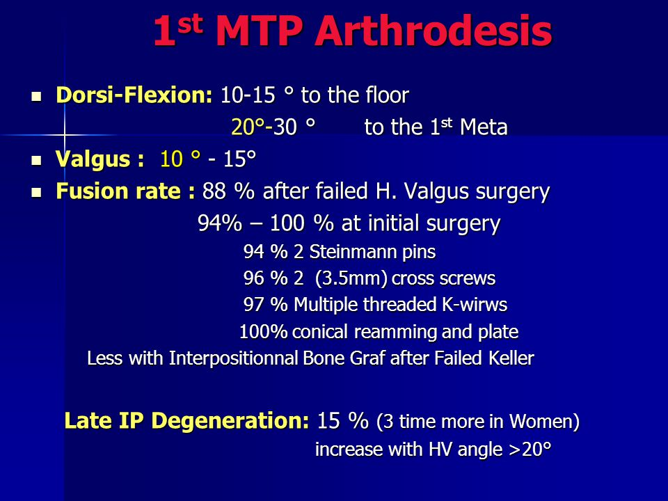 1st MTP Arthrodesis Dorsi-Flexion: 10-15 ° to the floor