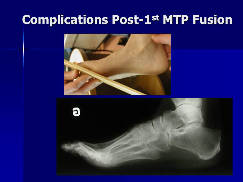 Complications Post-1st MTP Fusion