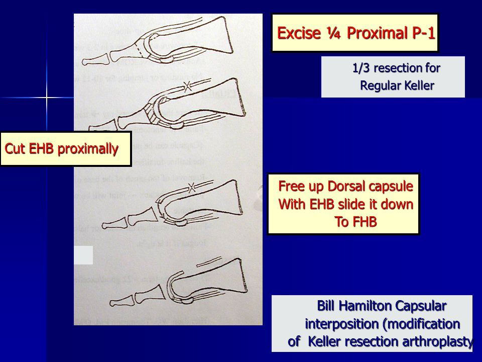 Excise ¼ Proximal P-1 Cut EHB proximally Free up Dorsal capsule