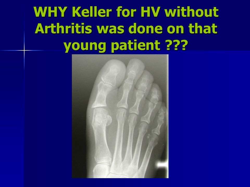 WHY Keller for HV without Arthritis was done on that young patient