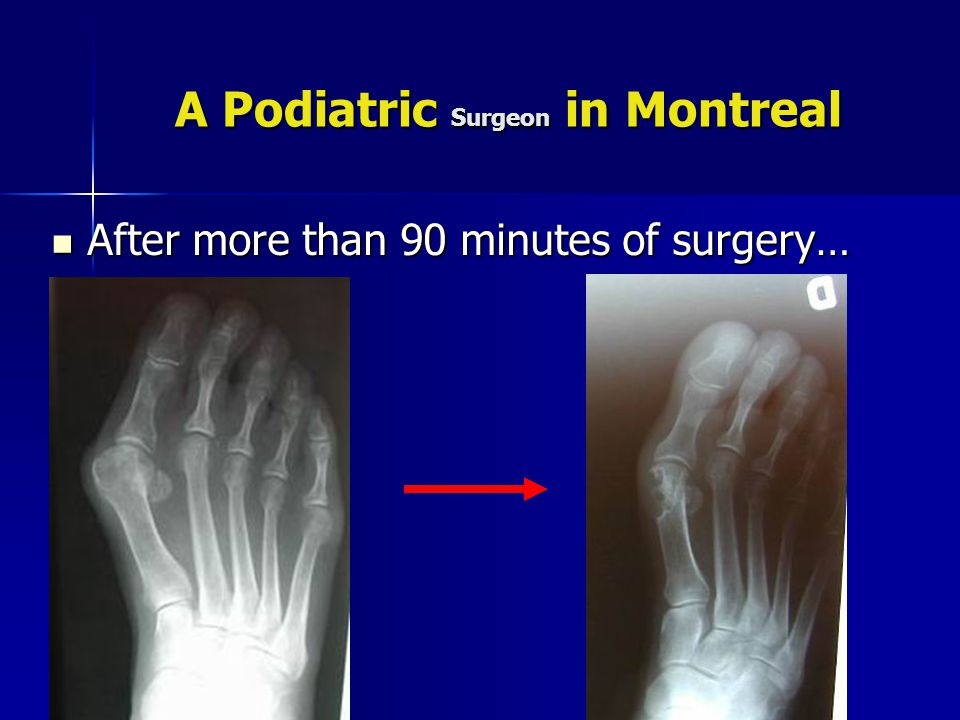 A Podiatric Surgeon in Montreal