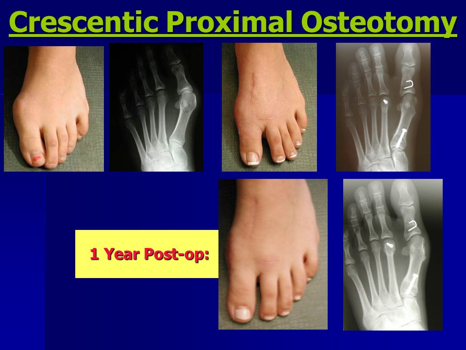 Crescentic Proximal Osteotomy