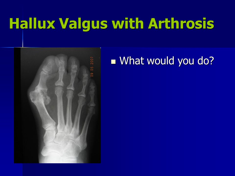 Hallux Valgus with Arthrosis