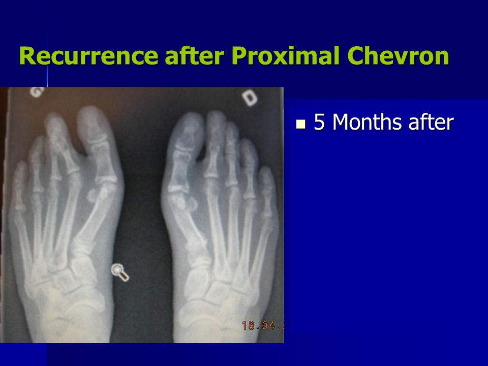 Recurrence after Proximal Chevron