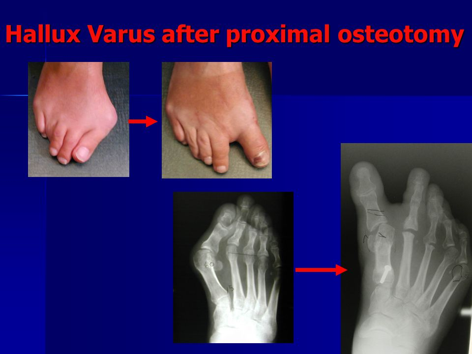 Hallux Varus after proximal osteotomy