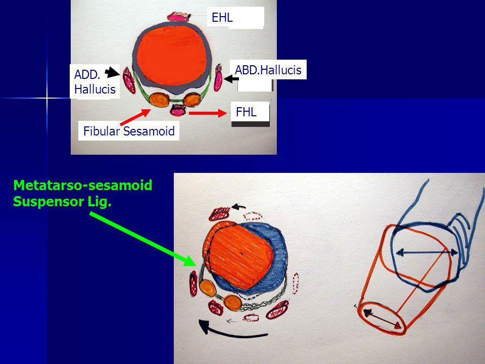Metatarso-sesamoid Suspensor Lig. EHL ABD.Hallucis ADD. Hallucis FHL