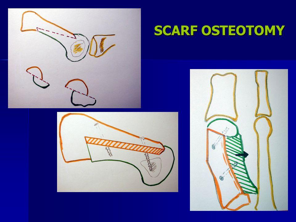 SCARF OSTEOTOMY