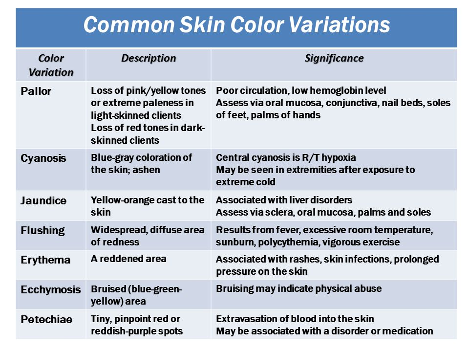 Common Skin Color Variations