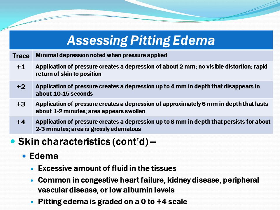 Assessing Pitting Edema