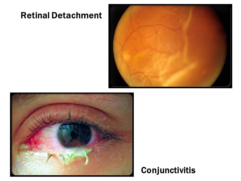 Retinal Detachment Conjunctivitis