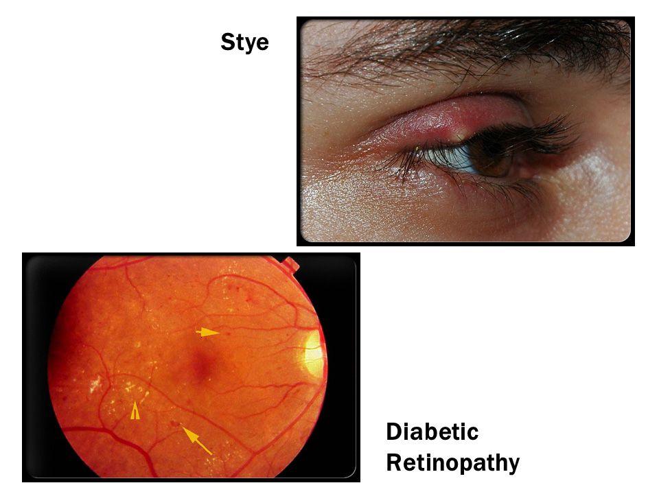 Stye Diabetic Retinopathy