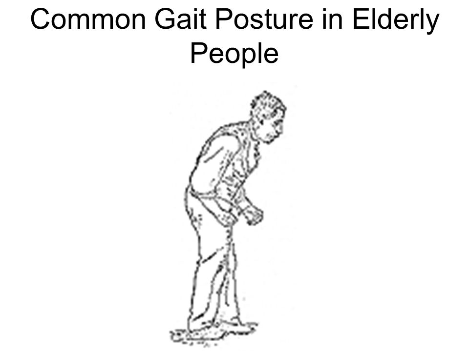 Common Gait Posture in Elderly People
