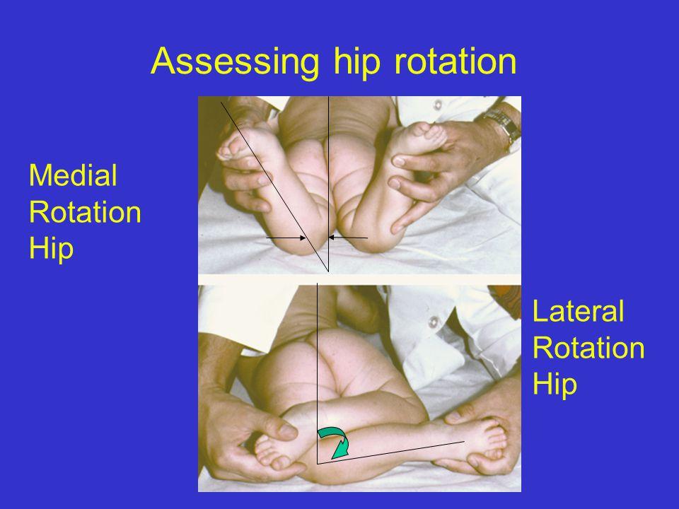 Assessing hip rotation