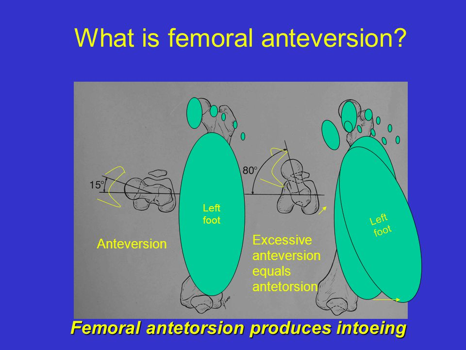 What is femoral anteversion