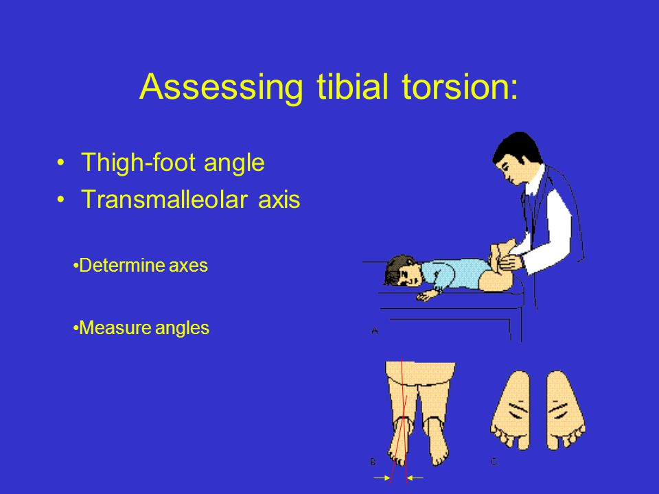 Assessing tibial torsion: