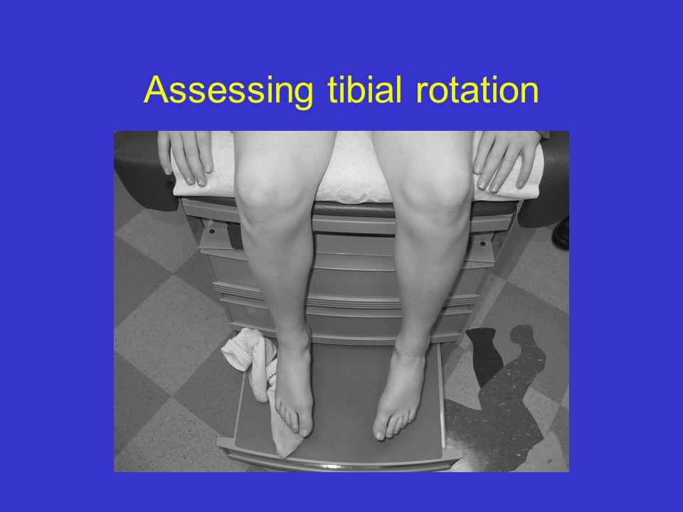 Assessing tibial rotation