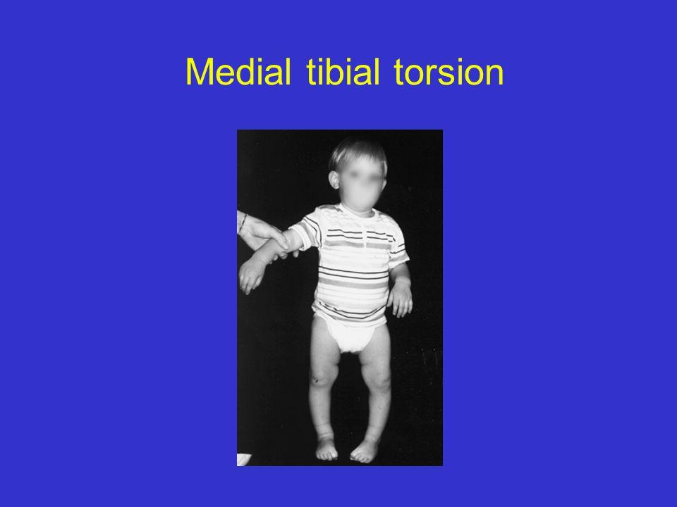 Medial tibial torsion