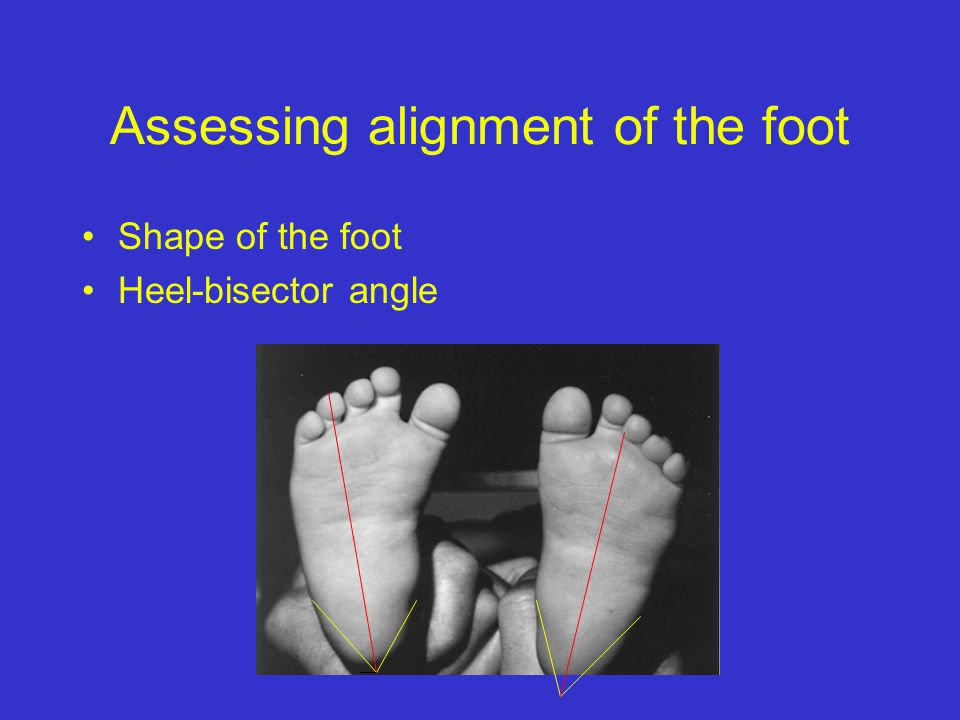 Assessing alignment of the foot