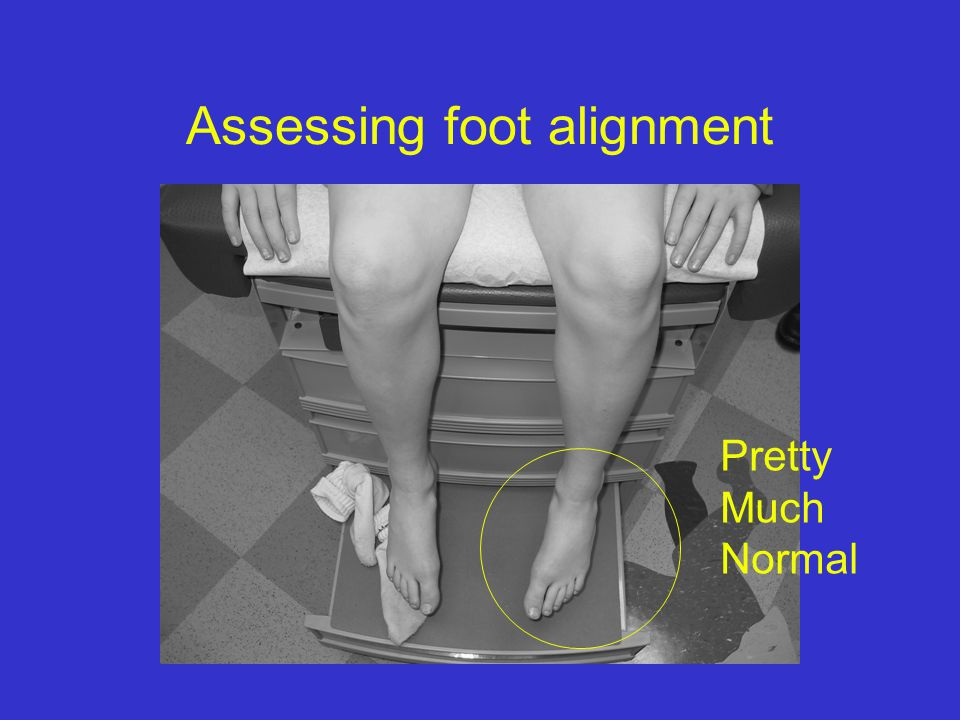 Assessing foot alignment