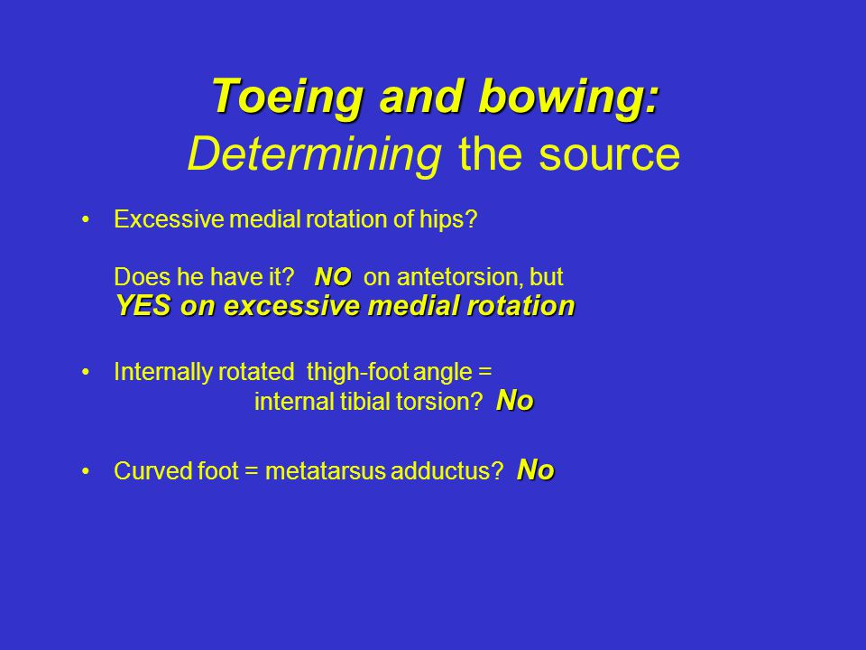 Toeing and bowing: Determining the source