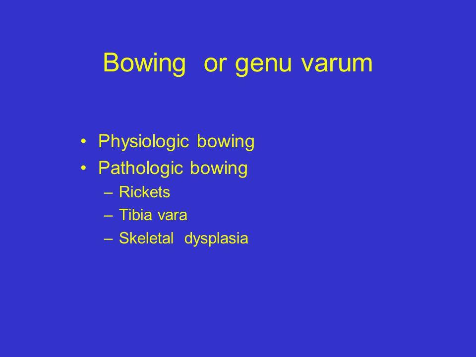 Bowing or genu varum Physiologic bowing Pathologic bowing Rickets