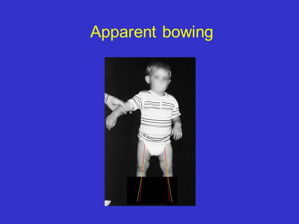 Apparent bowing