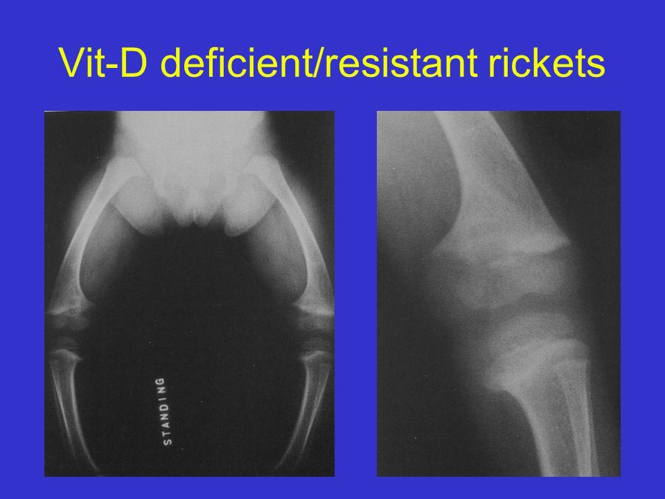 Vit-D deficient/resistant rickets