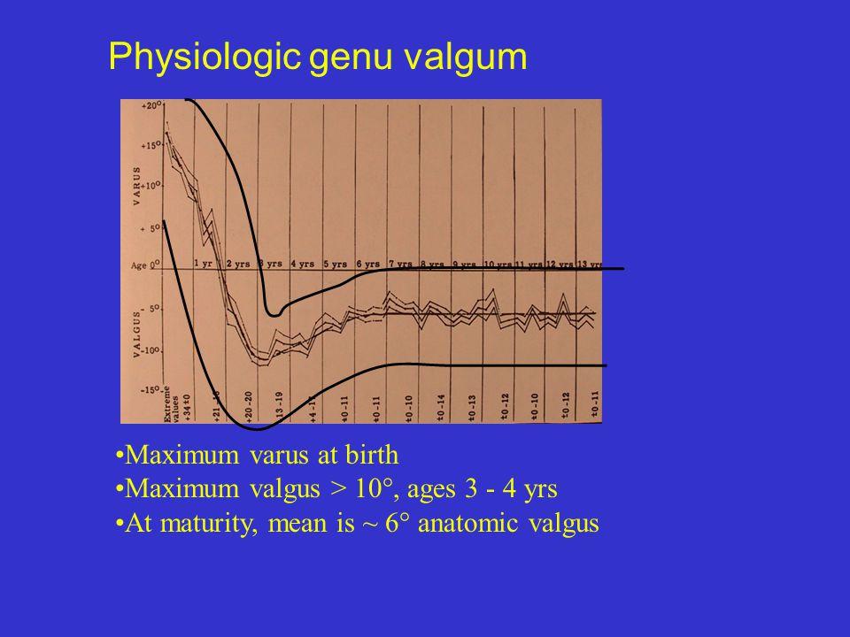 Physiologic genu valgum