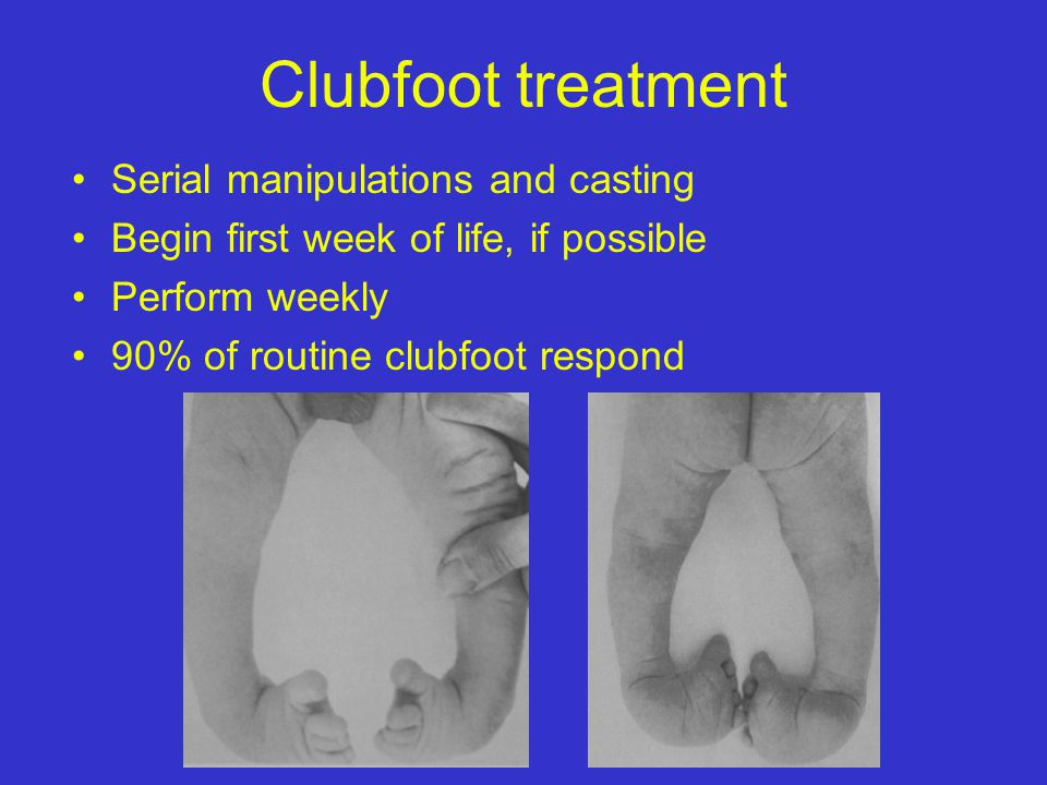 Clubfoot treatment Serial manipulations and casting