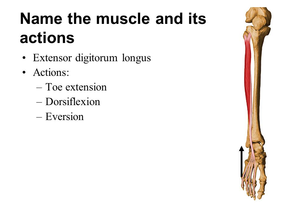 Name the muscle and its actions