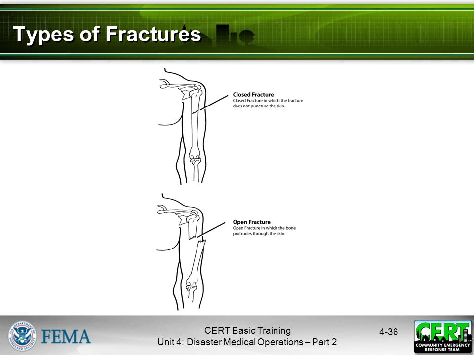 Treating Open Fractures