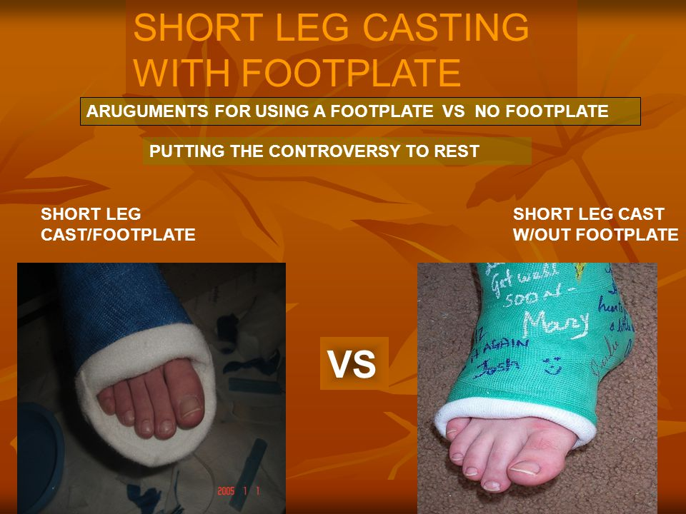 SHORT LEG CASTING WITH FOOTPLATE