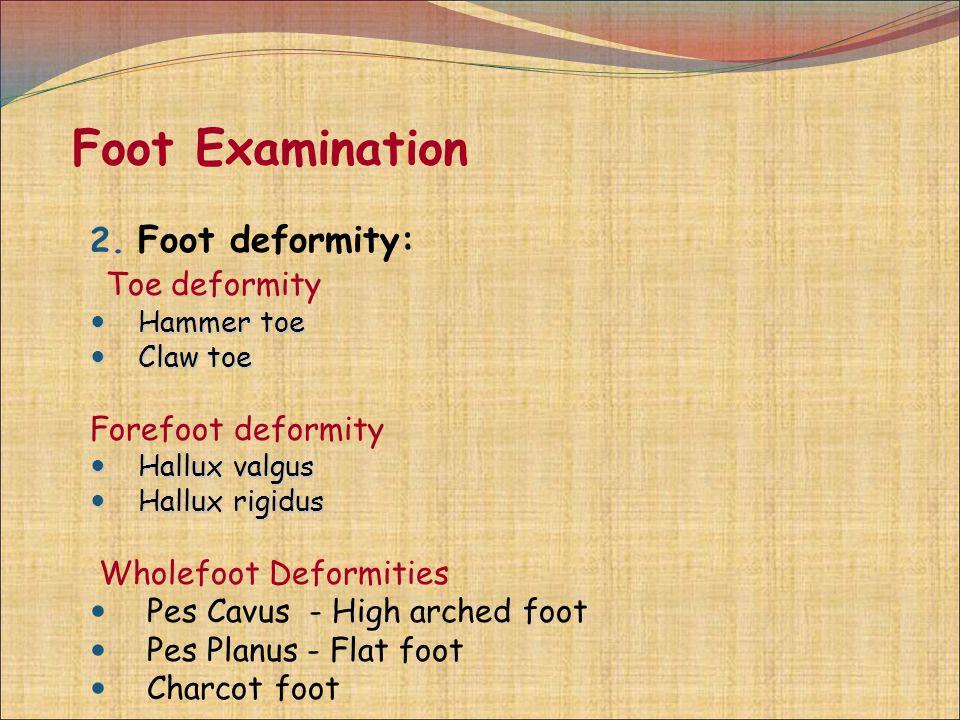 Foot Examination Foot deformity: Toe deformity Forefoot deformity