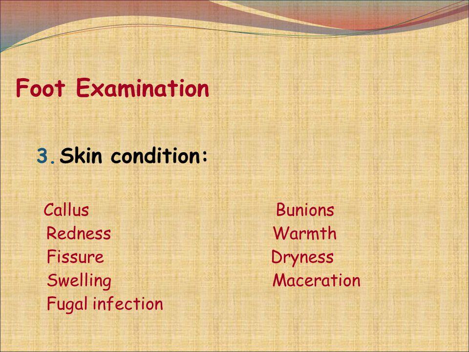 Foot Examination Skin condition: Callus Bunions Redness Warmth