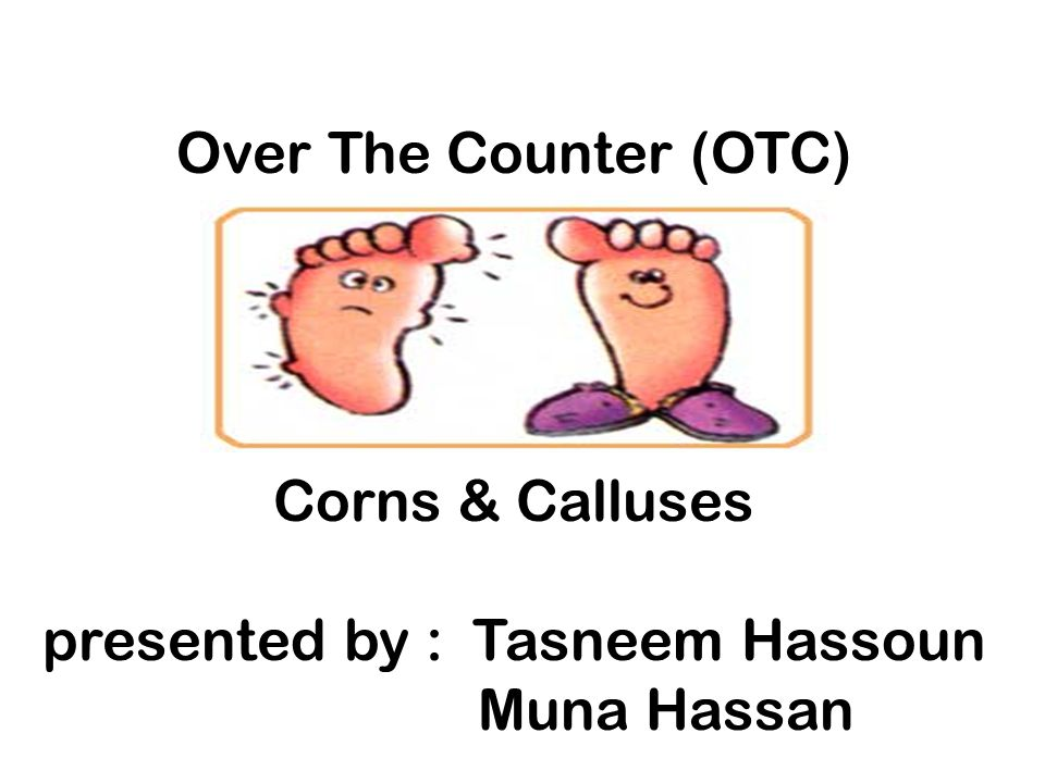 Over The Counter (OTC) Corns & Calluses presented by : Tasneem Hassoun Muna Hassan