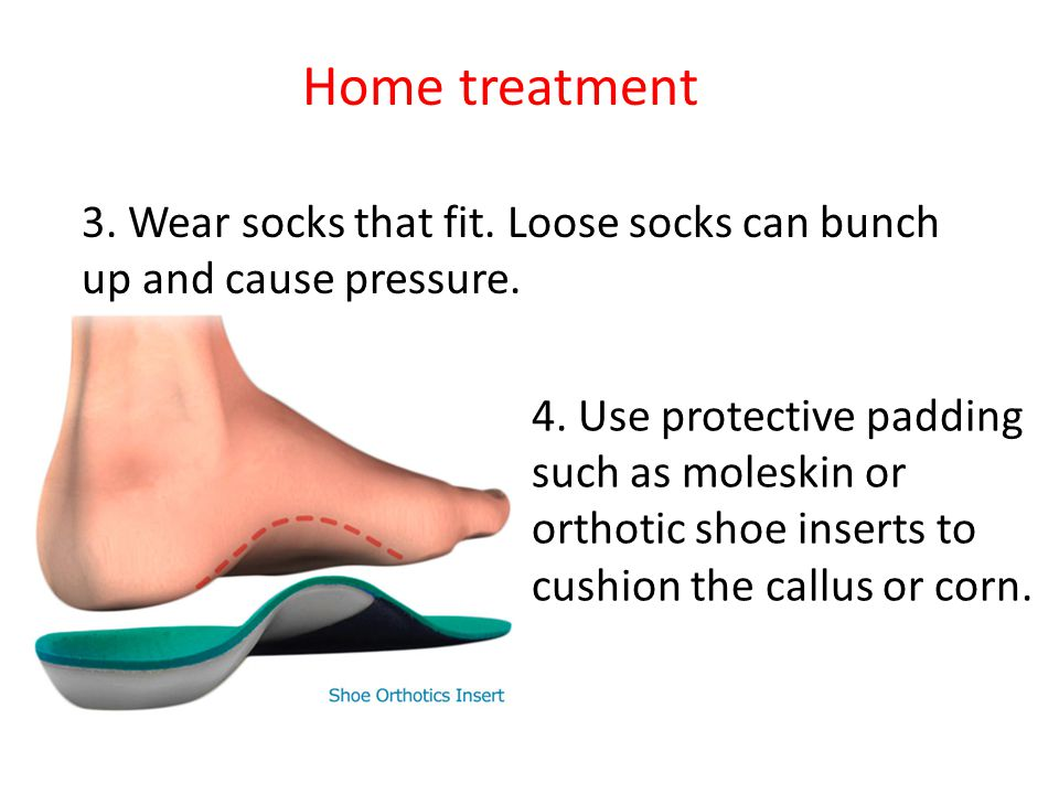 Home treatment 3. Wear socks that fit. Loose socks can bunch up and cause pressure.