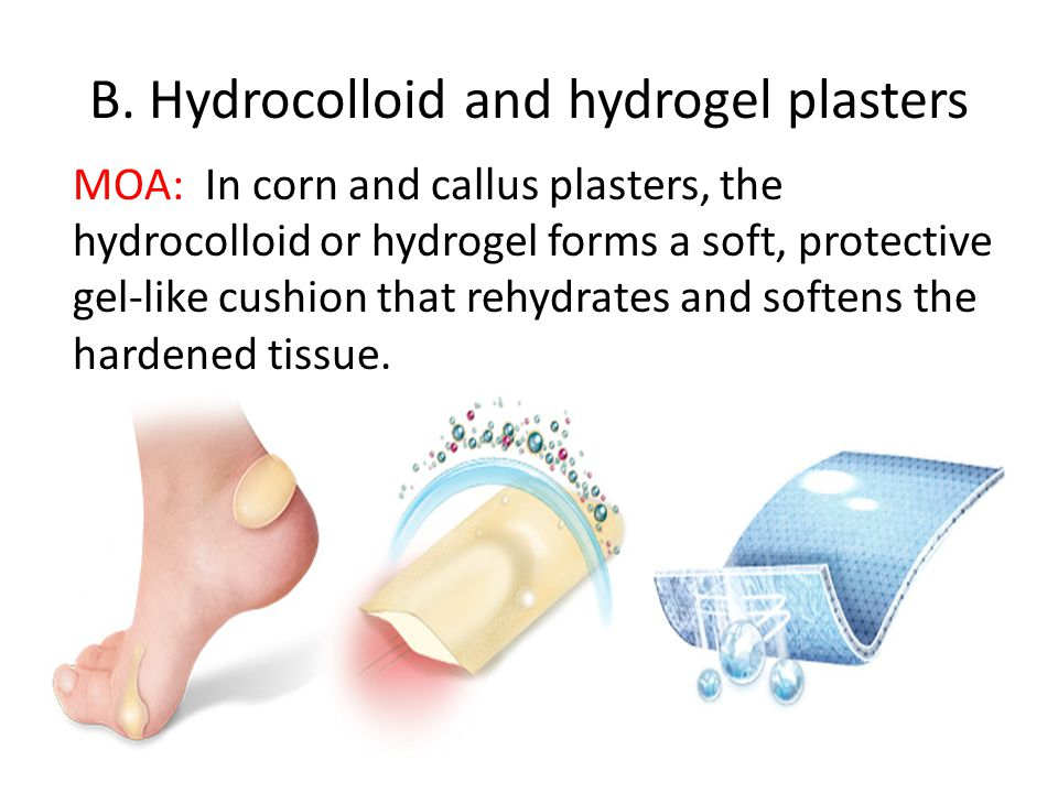 B. Hydrocolloid and hydrogel plasters