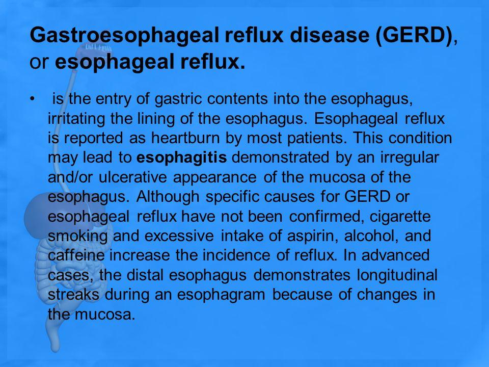 Gastroesophageal reflux disease (GERD), or esophageal reflux.