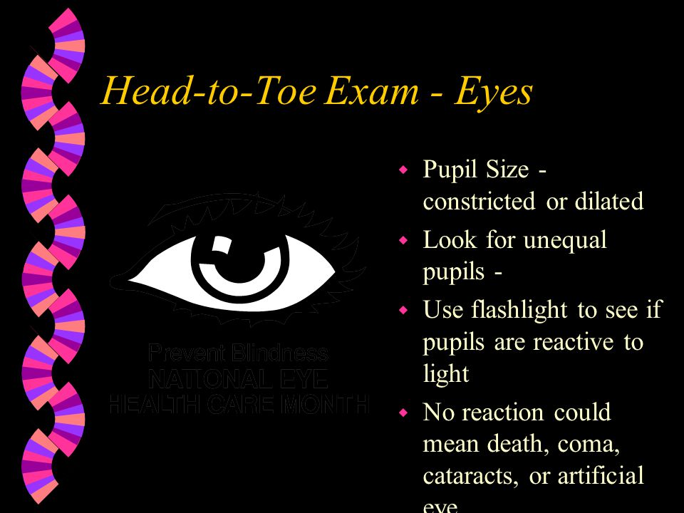 Head-to-Toe Exam - Eyes