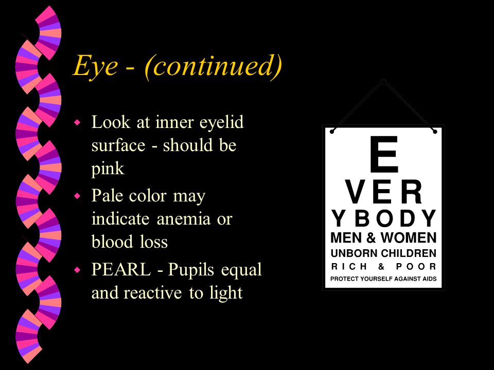 Eye - (continued) Look at inner eyelid surface - should be pink