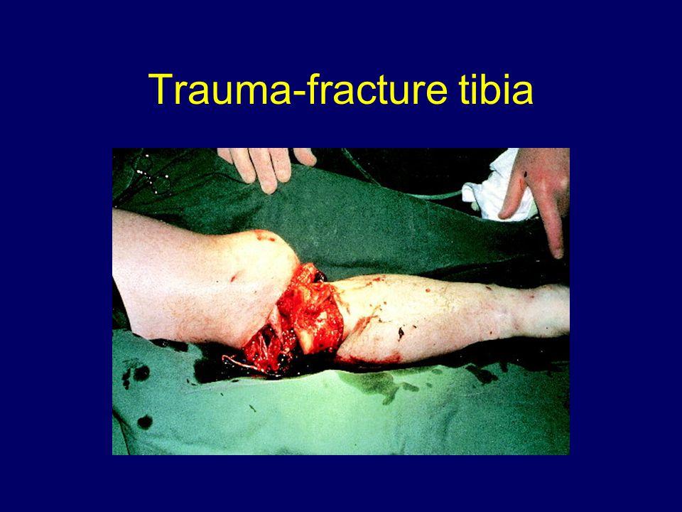 Trauma-fracture tibia